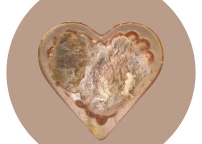 Corazón de carne. Seropositivo.